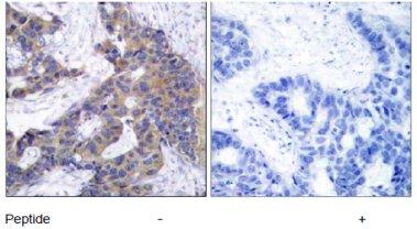 Immunohistochemistry (Paraffin-embedded sections) - JAK2 antibody (ab47572)
