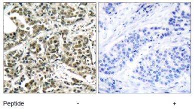 Immunohistochemistry (Paraffin-embedded sections) - BRCA1 antibody (ab47573)