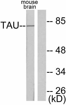 Western blot - Tau antibody (ab47579)