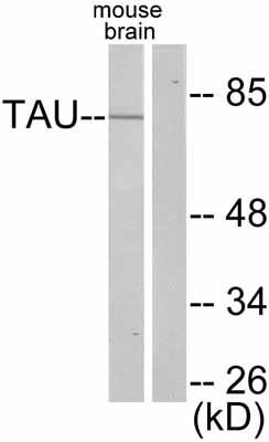Western blot - Tau antibody (ab47581)