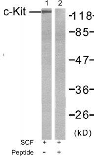 Western blot - c-Kit antibody (ab47587)