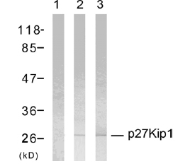 Western blot - p27 KIP 1 antibody (ab47590)