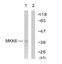 Western blot - MKK6 antibody (ab47593)