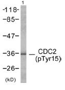Western blot - Cdc2  (phospho Y15) antibody (ab47594)