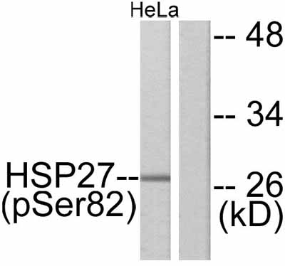 Western blot - Hsp27 (phospho S82) antibody (ab47595)