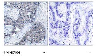 Immunohistochemistry (Paraffin-embedded sections) - eIF4E (phospho S209) antibody (ab47605)