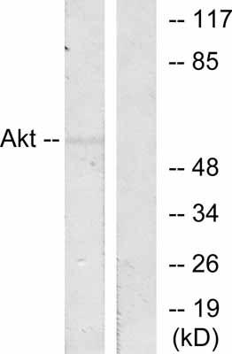 Western blot - AKT1 antibody (ab47610)