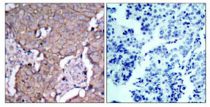 Immunohistochemistry (Paraffin-embedded sections) - ErbB 2 antibody (ab47612)