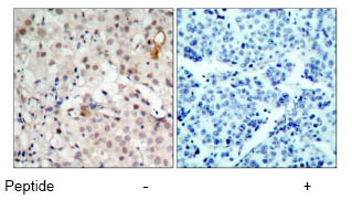 Immunohistochemistry (Paraffin-embedded sections) - ErbB 2 antibody (ab47613)