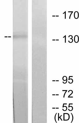 Western blot - ErbB 2 antibody (ab47613)