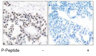 Immunohistochemistry (Paraffin-embedded sections) - Estrogen Receptor alpha (phospho S106) antibody (ab47615)