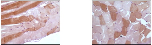 Immunohistochemistry (Formalin/PFA-fixed paraffin-embedded sections) - Myoglobin antibody [6H8B5] (ab47702)