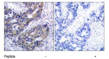 Immunohistochemistry (Paraffin-embedded sections) - IRS1 antibody (ab47746)