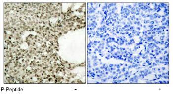 Immunohistochemistry (Paraffin-embedded sections) - STAT1 (phospho S727) antibody (ab47754)