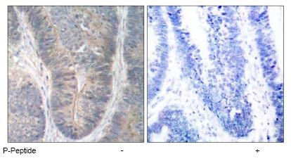 Immunohistochemistry (Paraffin-embedded sections) - PKR (phospho T451) antibody (ab47770)