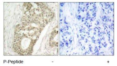 Immunohistochemistry (Paraffin-embedded sections) - PKC delta (phospho S645) antibody (ab47773)