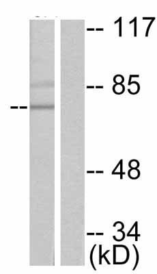 Western blot - PKC delta (phospho S645) antibody (ab47773)