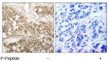 Immunohistochemistry (Paraffin-embedded sections) - PKC theta (phospho S676) antibody (ab47774)