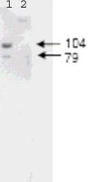Western blot - ABCB6 antibody (ab47837)