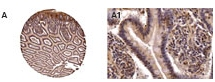 Immunohistochemistry (Formalin/PFA-fixed paraffin-embedded sections) - CARD15  antibody (ab47918)