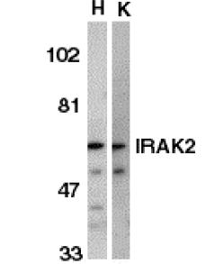 Western blot - IRAK2 antibody (ab47995)