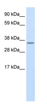 Western blot - 2010315L10Rik antibody (ab48332)