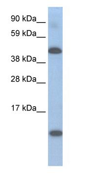 Western blot - Lcor antibody (ab48339)