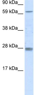 Western blot - Rhox11 antibody (ab48356)