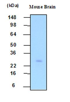 Western blot - Phosphoserine phosphatase antibody [3G12] (ab48512)
