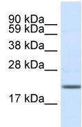 Western blot - SCN3B antibody (ab48552)