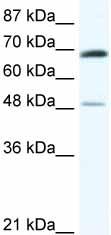 Western blot - ZNF35 antibody (ab48572)