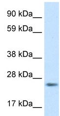 Western blot - FADD antibody (ab48577)