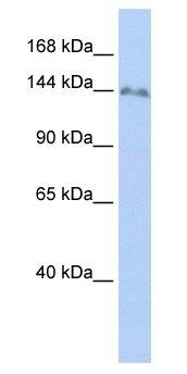 Western blot - ZNF620 antibody (ab48711)