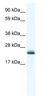 Western blot - Tubulin Polymerization Promoting Protein antibody (ab48731)