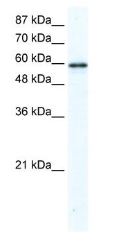 Western blot - G3BP antibody (ab48739)