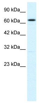 Western blot - KCNN2 antibody (ab48817)