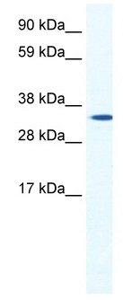 Western blot - HOXB1 antibody (ab48821)