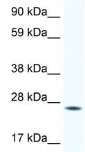 Western blot - HOXB7 antibody (ab48829)