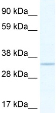 Western blot - APE1 antibody (ab48832)