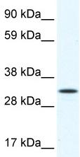 Western blot - ARA9 antibody (ab48833)