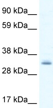 Western blot - PDLIM1 antibody (ab48835)