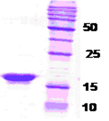 SDS-PAGE - beta Synuclein protein (ab48853)