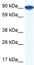 Western blot - Zfy1 antibody (ab48857)