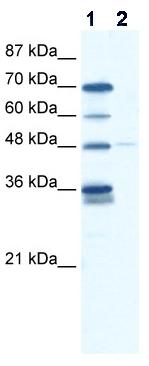 Western blot - GliS2 antibody (ab48861)