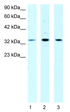 Western blot - DBPA antibody (ab48952)