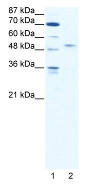 Western blot - IRF5 antibody (ab49056)