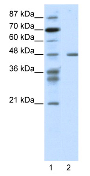 Western blot - Proteasome 19S S7 antibody (ab49058)