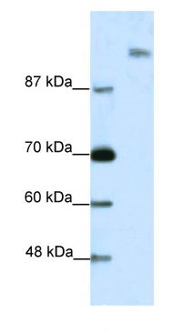 Western blot - Spt6 antibody (ab49066)