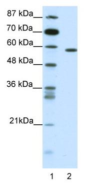 Western blot - NR1D2 antibody (ab49072)