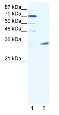 Western blot - MAGEA9 antibody (ab49074)